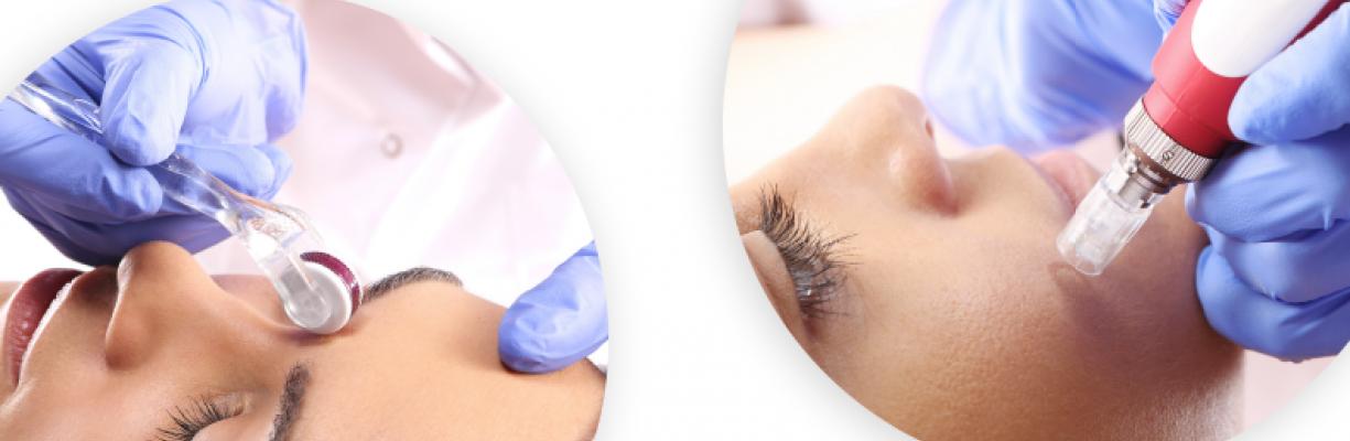 За здрава и красива кожа използвайте дерма ролер